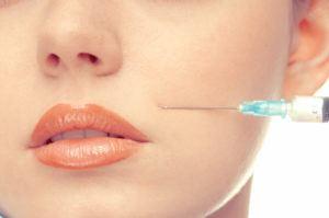 Behandeling van de neuslippenplooi