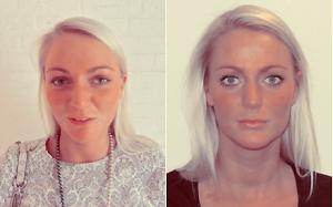 Voor en na behandeling van de lippen