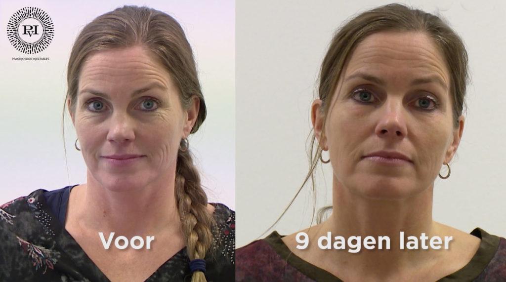 Ervaringen Plexr. Voor en na foto van een vrouw die behandeling heeft ondergaan met plexr plasmabehandeling onder de ogen