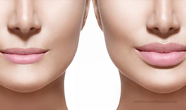 Behandelen van de lippen