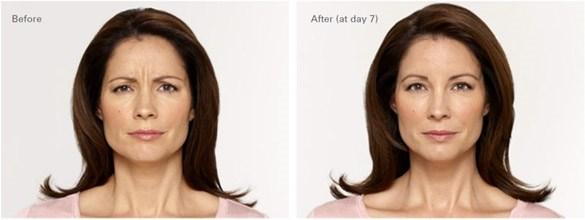 Botox fronsrimpel