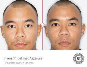 Voor en na foto van de Fronsrimpel behandeling met botox