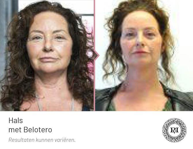 voor en na foto van de hals/nek behandeling met Belotero filler