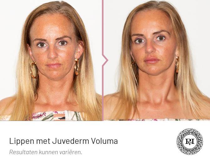 Voor en na Lippen behandeling met Juvederm