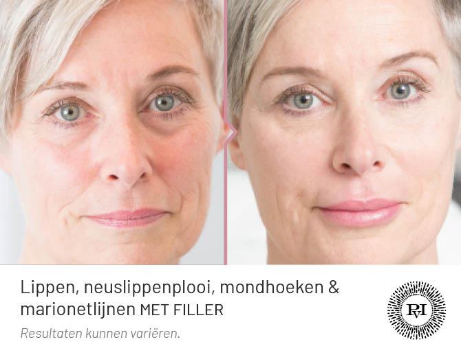 Voor en na foto van de mondhoeken, lippen, neuslippen en marionetlijnen behandeling met filler
