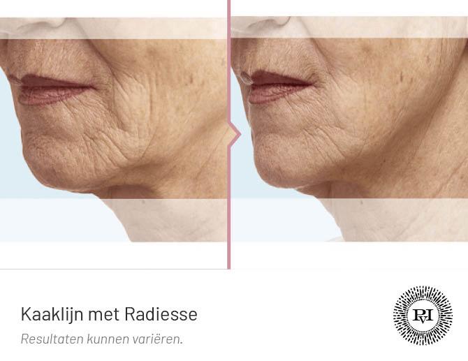 voor en na foto van de kaaklijn behandeling met Radiesse filler