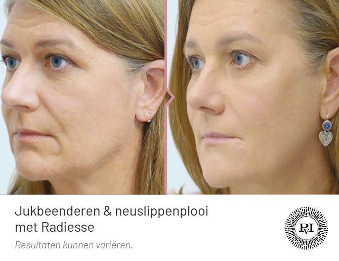 voor en na foto van de jukbeenderen en neuslippenplooi behandeling met filler Radiesse