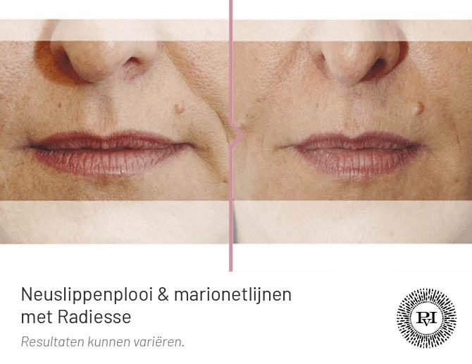 voor en na foto van de neuslippenplooi en marionetlijnen met Radiesse filler