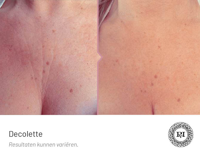 voor en na foto van de decolleté behandeling