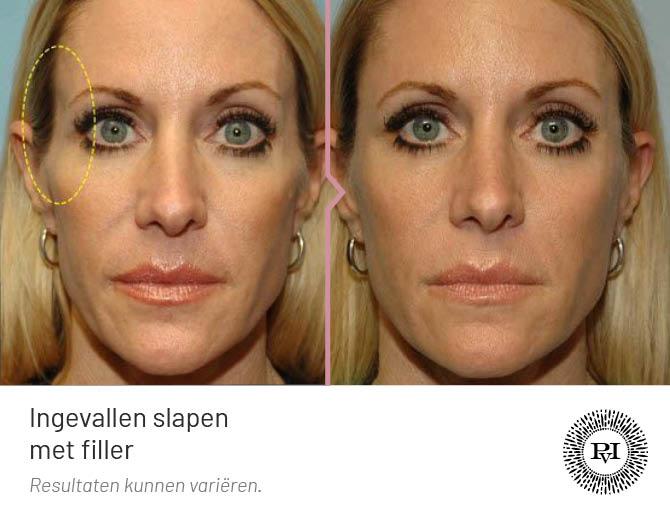 voor en na foto van de ingevallen slapen behandeling met fillers