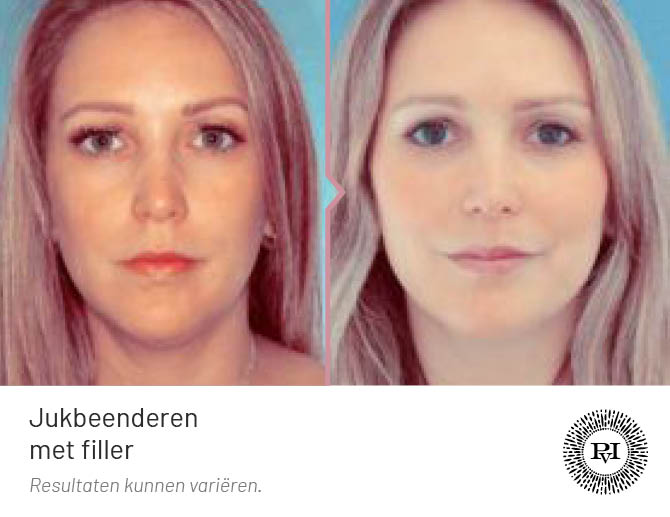 voor en na foto van de jukbeenderen behandeling met fillers