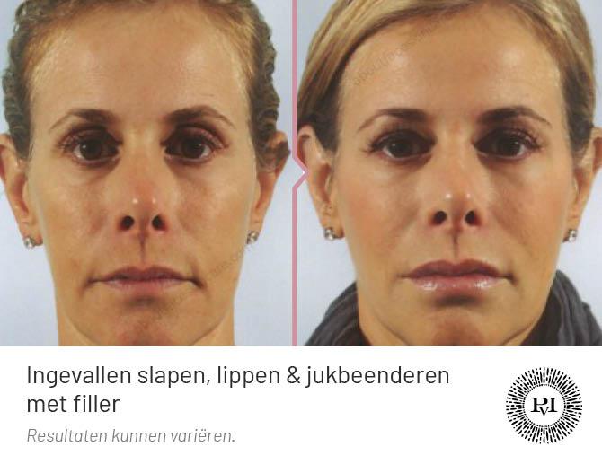 Voor en na foto van de jukbeenderen, ingevallen slapen en lippen met fillers