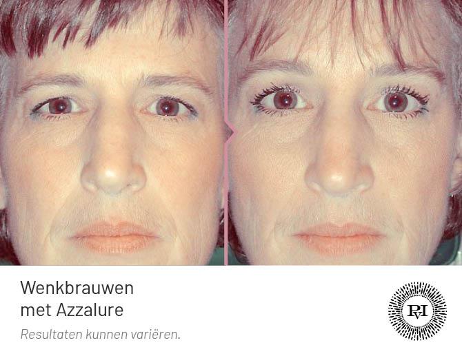 Voor en na foto wenkbrauwlift behandeling Azzalure