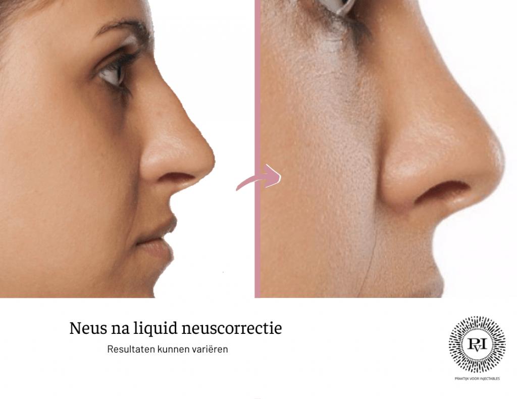Neus voor na liquid neuscorrectie