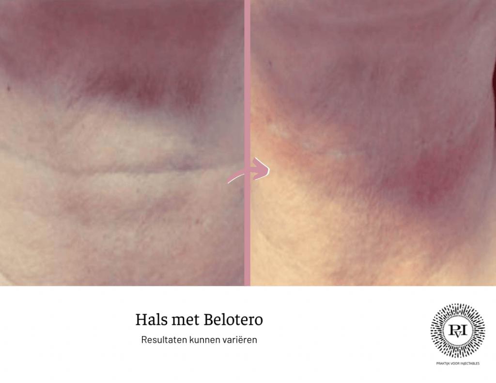 Voor en na foto belotero hals