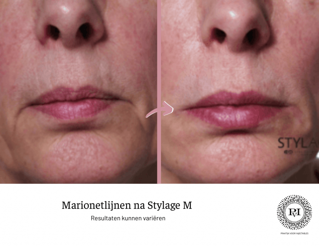 Voor en na foto Stylage M