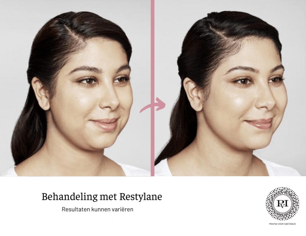 Restylane voor- en nafoto