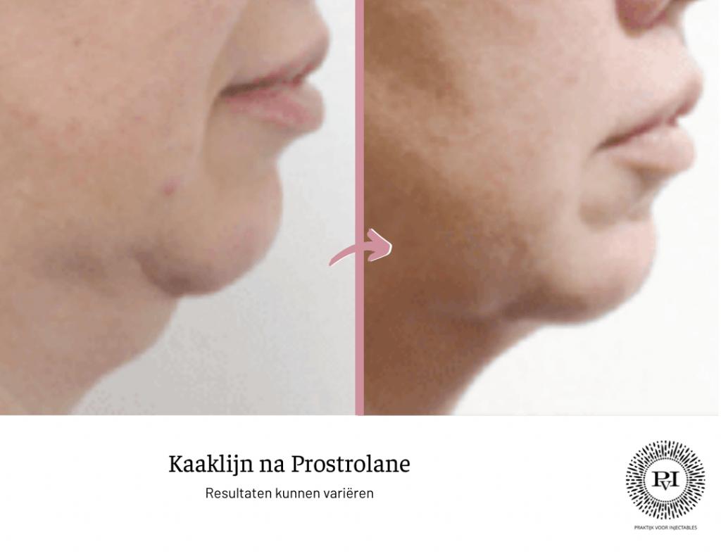 Voor en na foto Prostrolane