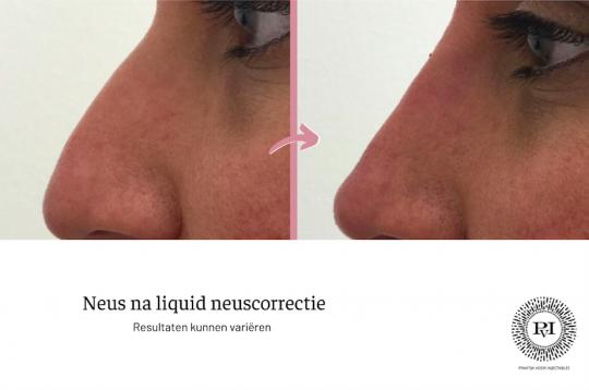 Voor en na neus liquid neuscorrectie