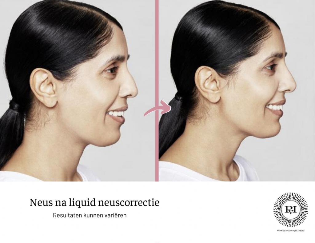 Voor en na foto neus na Restylane