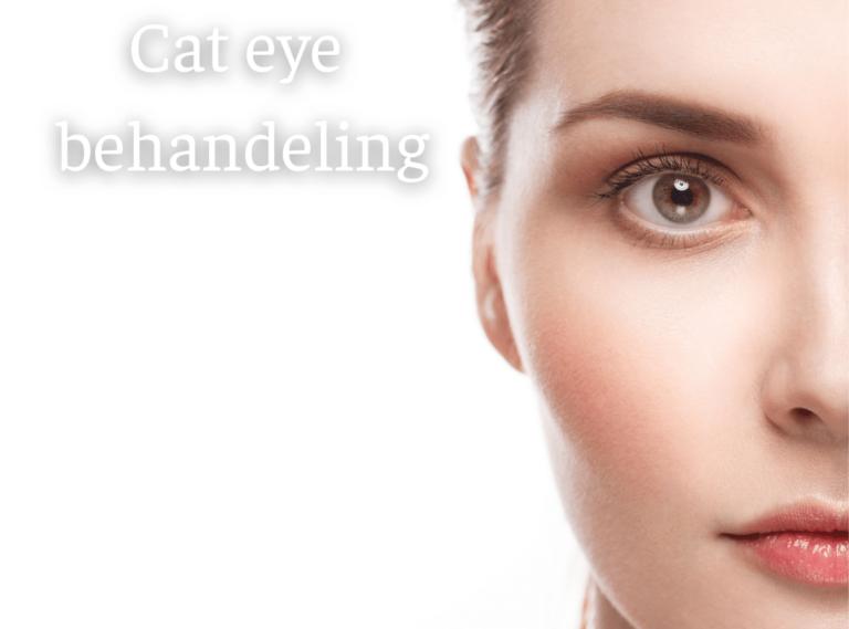 Cat eye behandeling