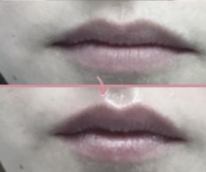 Fotona 4D LipLase