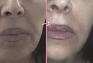 Plexr Omnia Collagen Shaping